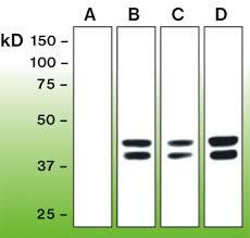 CST专家对磷酸化抗体使用的建议